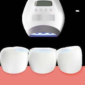 池尻大橋の歯医者 歯を白く綺麗にするホワイトニング