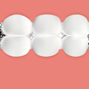 歯ぎしりと食いしばりによる過剰咬合圧、ガミースマイル、口角UPの咬筋ボツリヌストキシン療法