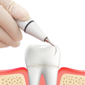 歯周病治療_スケーリング_scaling