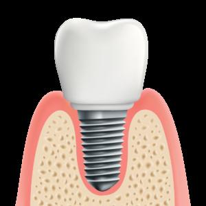 歯科インプラント治療