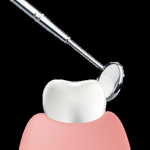 無料歯科相談