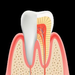 caries_むし歯のない健康な歯