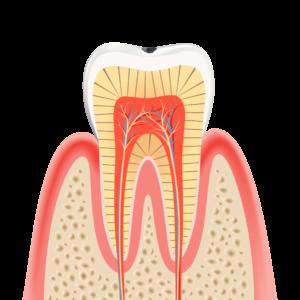 caries_LV1 エナメル質のむし歯