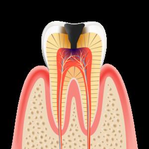 caries_LV3 神経まで進んだむし歯