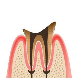 caries_LV4 歯根だけ残ったむし歯